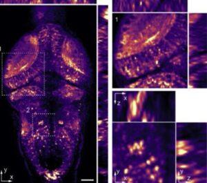 Light-field-3d-microscopy for fast volumetric-brain-imaging